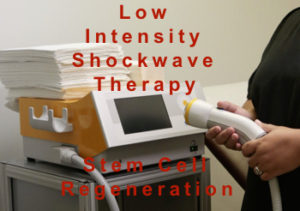 shockwave machine to fix curve in penis