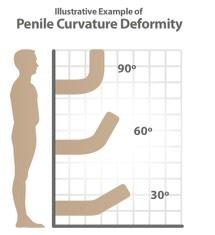 penile-curvature