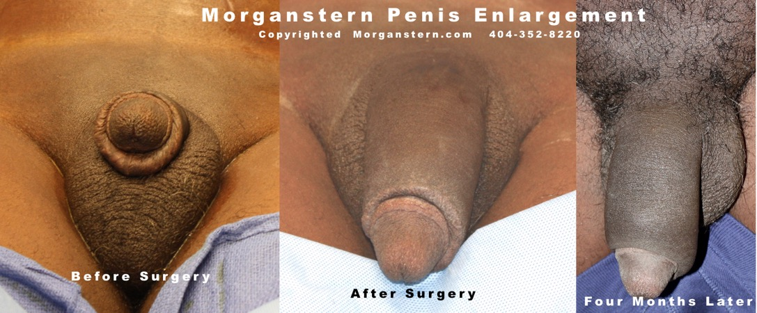 Time Lapse Penis Enlargement Photos