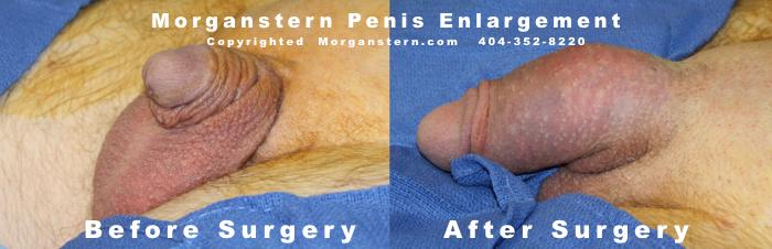 Før Og Efter Penis udvidelsen kirurgi Fotos Indstillinger-7491