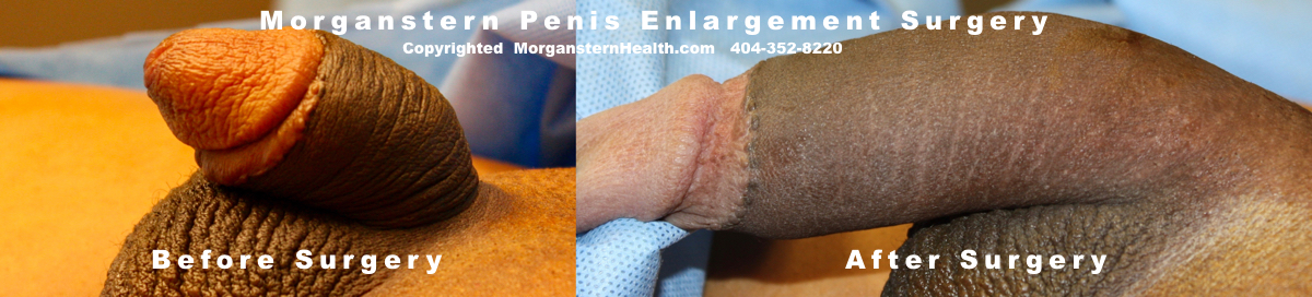 Maximum inches Penis Surgery Pics