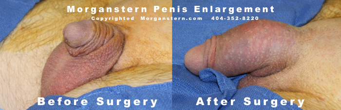 Buried Penis After Enlargement Surgery