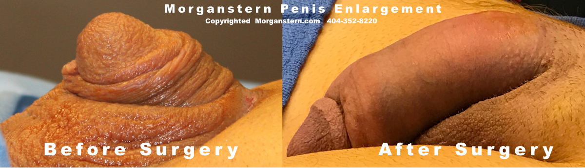 Micro Penile Disorder treatment pic