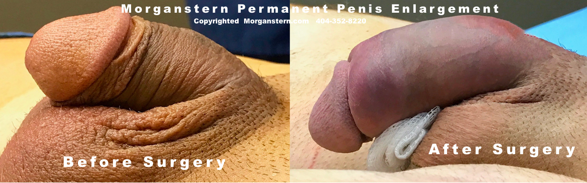 Penile Surgeries Closeups Dickson