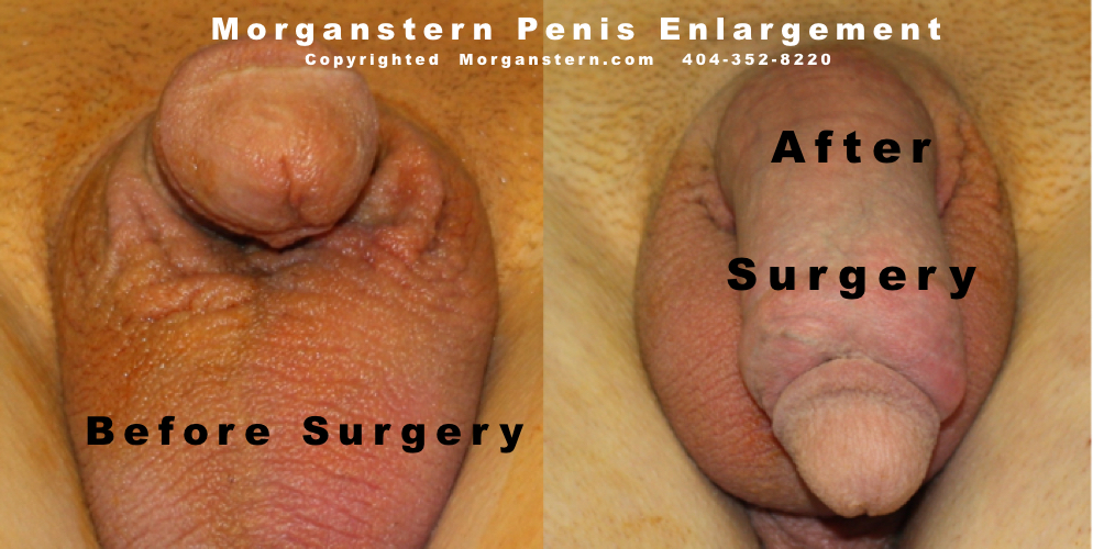 dickson photos penis before after