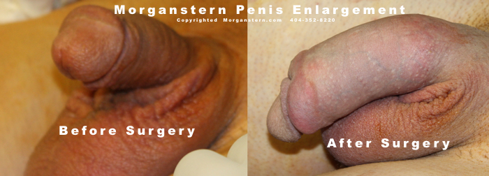 Extension penis non-surgical
