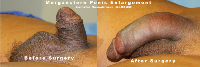 penis growth successful operation pics