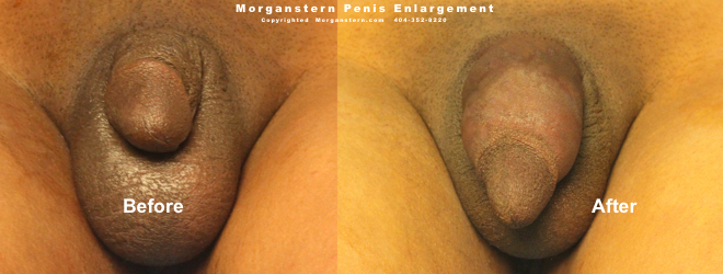 Thicker Penis After Surgical