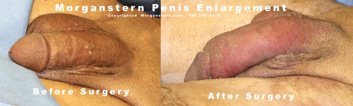 Surgical photos penile enlargement