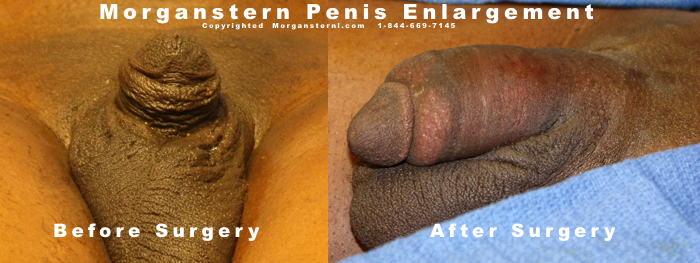 Male Enhancement After Surgery Photo