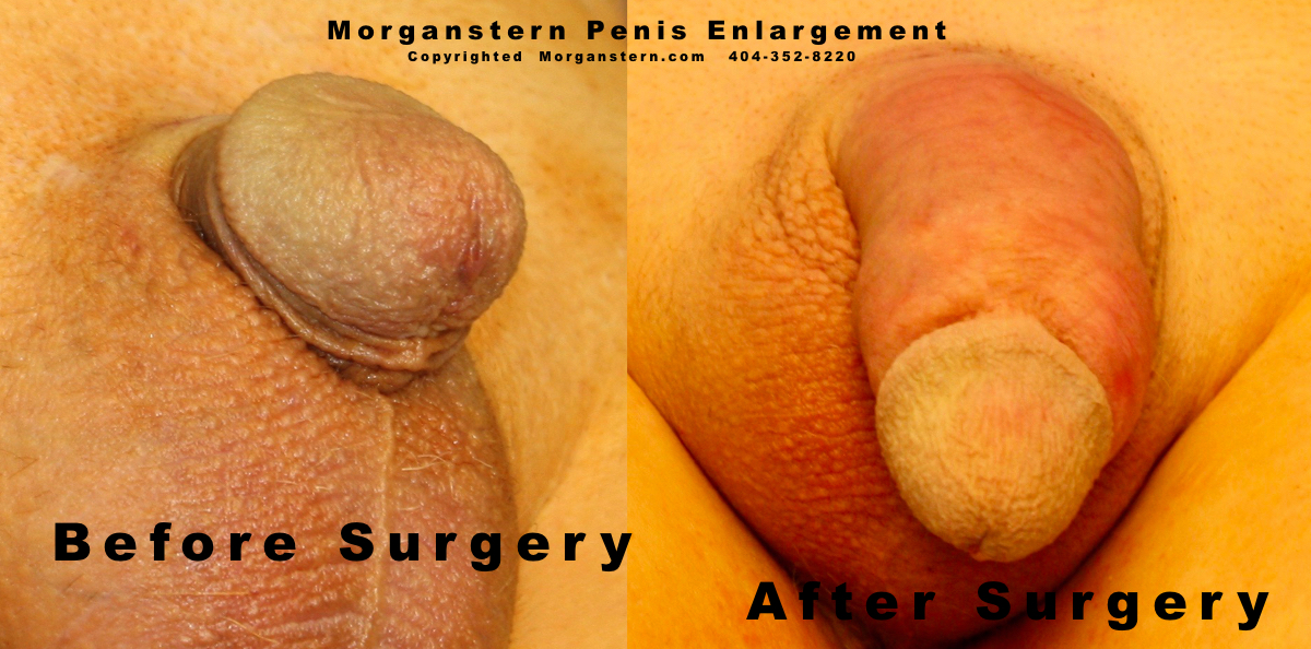 Micropenises after surgery closeup