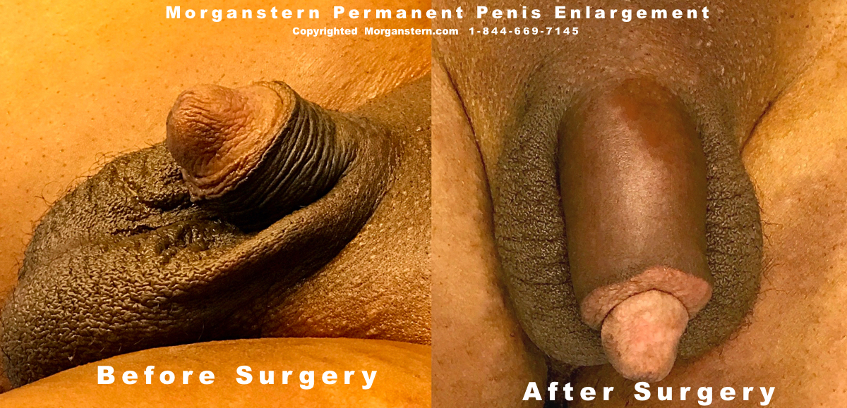 Before After penis thicker