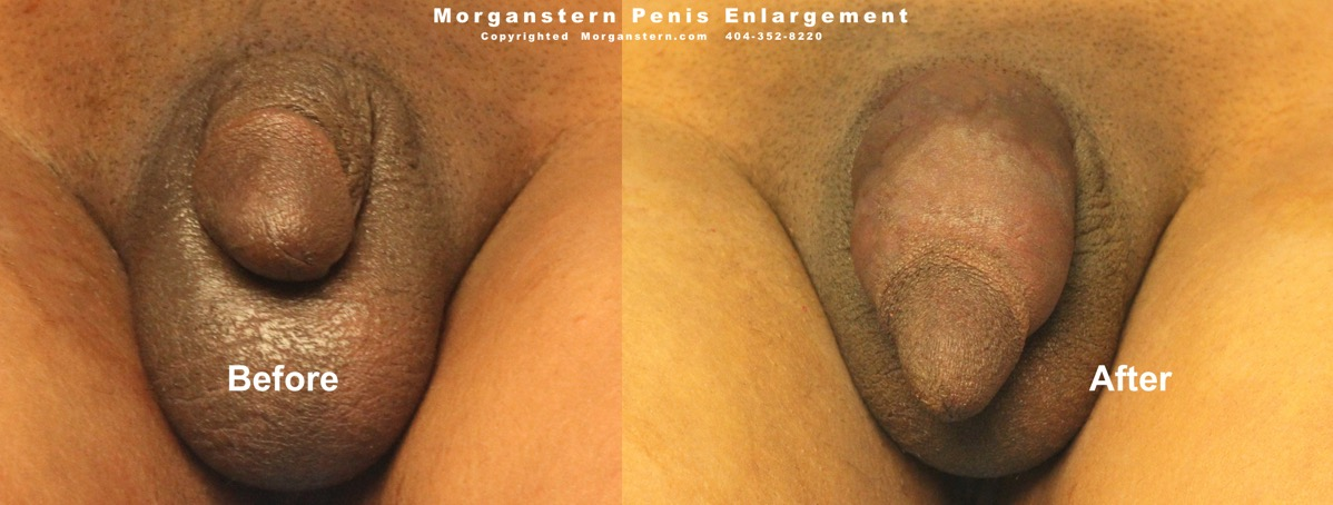 Penis Enlargement Before And After The Treatment Penomet Review