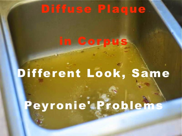 how to reduce peyronies plaque