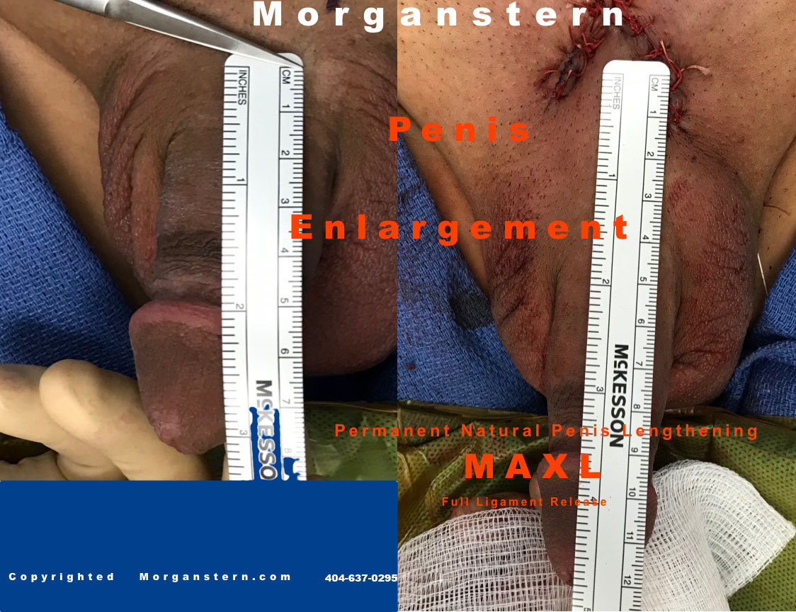 permanent surgery penis after pics