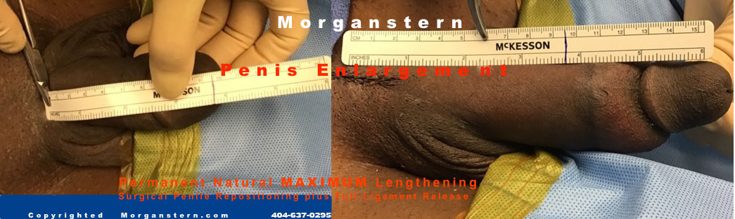 maximum penis size surgery