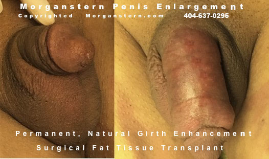tiny penis at birth correction